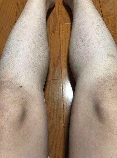 家庭用脱毛器のトリア4Xを使って膝とすね毛のレーザー脱毛、保冷剤で冷やした体験談